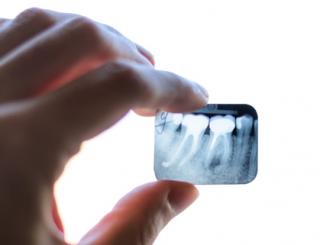 Röntgenbild Zahnwurzeln und Zahnfleisch