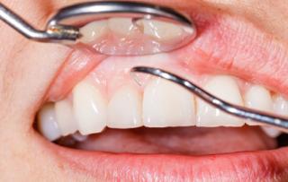 Eine Zahnfleischuntersuchung ist schmerzfrei