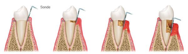 Entwicklung einer Zahnfleischentzündung