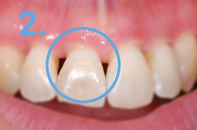 Zahnfleischrückgang durch Entzündung