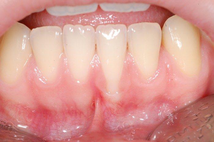 Zahnfleischrückgang am unteren Schneidezahn bedingt durch ungleichmäßige Stellung der Zahnwurzeln und sehr dünnen Kieferknochen. Beginnende Schmerzhaftigkeit beim Zähenputzen bedingt durch Beweglichkeit im Bereich der äußeren Zahnfleischdichtung. Zusätzliche Behinderung durch Einstrahlendes Lippenbändchen.