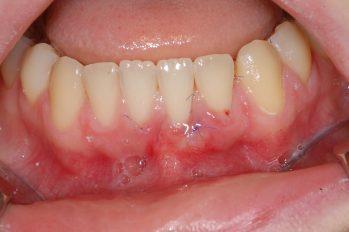 Zunächst Wiederherstellung und Aufbau der Zahnfleischdichtung durch Transplantation von Gaumengewebe. Später kann vielleicht noch eine Anpassung des Lippenbändchens sinnvoll sein.