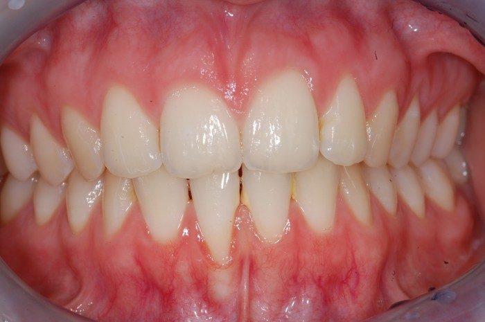 Im Bereich der Unterkieferfrontzähne liegt eine generell sehr dünnes Zahnfleisch und ein dünner Kieferknochen vor. Ein Zahnfleischrückgang ist bereits am rechten unteren Schneidezahn eingetreten. Ein genereller Aufbau von Zahnfleisch im Bereich der unteren Schneidezähne ist sinnvoll, um langfristig weiteren Zahnfleischrückgang zu vermeiden und damit den Erhalt der unteren Schneidezähne zu sichern.
