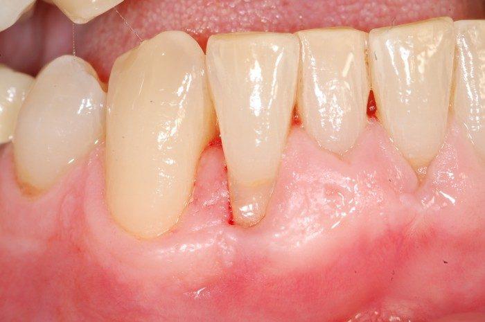 Zahnfleischrückgang bedingt durch deutliche Fehlstellung der unteren Frontzähne. Der seitliche rechte Frontzahn steht im Vergleich zum mittleren rechten Schneidezahn deutliche weiter nach außen. Dadurch bedingt hat dieser Zahn auf der Außenfläche einen viel dünneren Kieferknochen und dünneres Zahnfleisch. Ein Aufbau von Zahnfleisch und eine Veränderung der Zahnputztechnik kann hier zunächst helfen. Zusätzlich kann durch eine kieferorthopädische Korrektur der Frontzähne der Druck beim Zähneputzen auf das äußere Zahnfleisch reduziert werden.