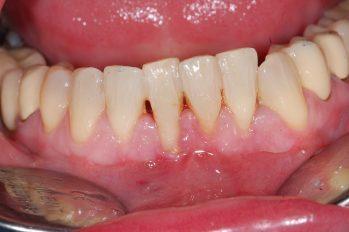 """Zahnfleischrückgang und bereits erkennbarer Knochenabbau an unteren Schneidezähnen. Hier liegt ein sehr dünner Kieferknochen und eine ungleichmäßige Anordnung der Zahnwurzeln der unteren Schneidezähne vor. Zusätzlich ist die Zahnfleischabdichtung der beiden unteren Schneidezähne nicht mehr gegeben. Ziel ist hier der Erhalt der Frontzähne durch eine Transplantation von Gaumengewebe und damit ein besserer Schutz vor dem Eindringen von Bakterien und den Zahnhalteapparat. Eine optische Korrektur der freien Zahnzwischenräume durch minimale Verbreiterungen der Zähne mittels Komposittechnik erreicht werden. Eine vollständige Wiederherstellung des """"verlorenen"""" Zahnfleisches kann nur sehr unwahrscheinlich dauerhaft erreicht werden."""