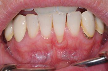 Zahnfleischrückgang am unteren linken Schneidezahn von 3 - 4 mm. Verlust von abdichtendem Zahnfleisch. Hierdurch bedingte Entzündung. Ursächlich durch einen sehr dünnen Kieferknochen und durch eine weit nach außen stehende Wurzel des betroffenen Schneidezahnes. Wiederaufbau von abdichtendem Zahnfleisch durch Transplantation von Gaumengewebe, sowie nachfolgende Korrektur des Lippenbändchen. Eine Korrektur der Wurzelneigung durch eine kieferorthopädische Maßnahme würde den langfristigen Erfolg deutlich Verbessern.