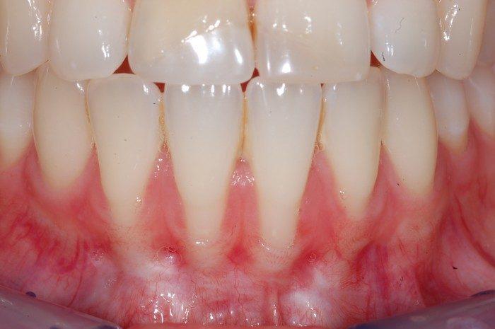 Anatomisch bedingte sehr dünne Knochen- und Zahnfleischverhältnisse im Bereich der unteren Frontzähne. Eine Verdickung des sehr dünnen Zahnfleisches wird zunächst eine Abdeckung der feien Wurzeloberflächen erreichen und damit einem weiteren Rückgang stoppen. Zukünftig sollte eine schonende Zahnputztechnik und fortlaufende Kontrollen stattfinden.