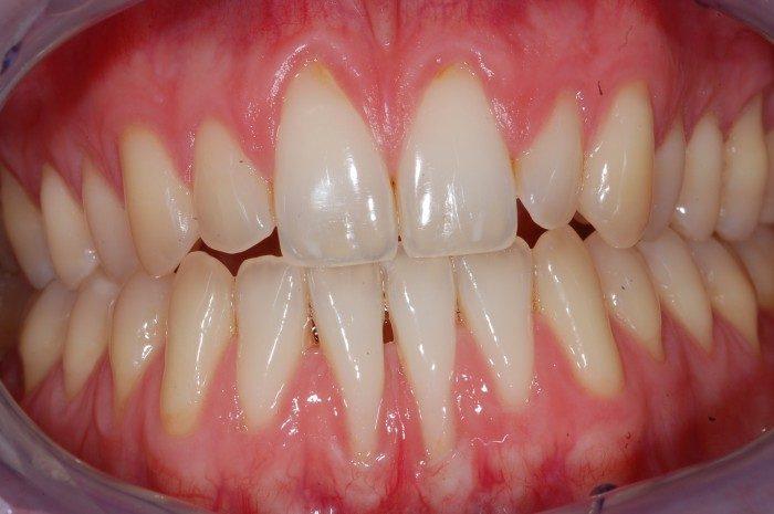 """Genereller Zahnfleischrückgang im Frontzahnbereich von Oberkiefer und Unterkiefer. Steil nach """"hinten"""" stehende Unterkieferfrontzähne nach kieferorthopädischer Korrektur und sehr dünne anatomische Knochen- und Zahnfleischverhältnisse begünstigen den Rückgang des Zahnfleisches. Hier kann zunächst eine Transplantation von Gaumengewebe die dünnen Zahnfleischverhältnisse verdicken und damit die freien Wurzeloberflächen schützen."""