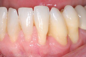 Genereller Zahnfleischrückgang im Unterkieferbereich. Lokal ebenfalls bereits Knochenabbau vorhanden. Dies ist durch die freien Zahnzwischenräume erkennbar. Durch eine Implantation und Transplantation von Gaumengewebe kann der Rückgang teilweise rückgängig gemacht werden. Dadurch können die empfindlichen und freiliegenden Wurzeloberflächen zumindest teilweise wieder abgedeckt werden.  Eine vollständige Wiederherstellung ist nicht möglich.