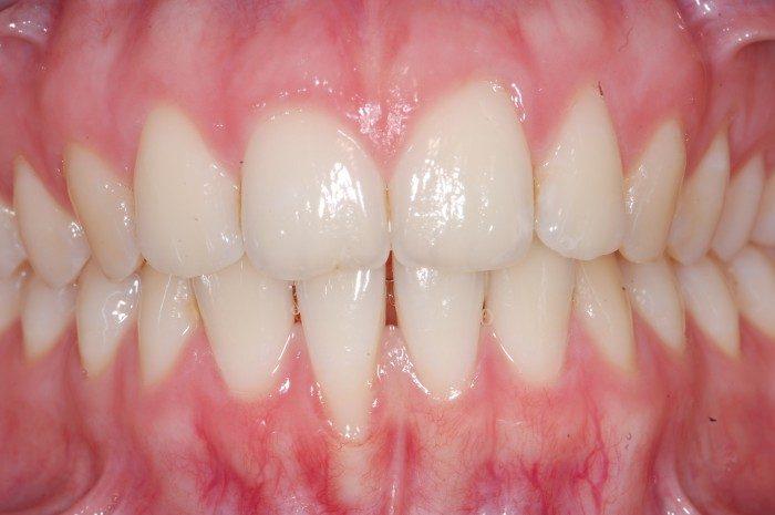 Sehr dünnes Zahnfleisch und extrem dünner Kieferknochen im Bereich der Frontzähne des Unterkiefers. Bereits eingetretener Zahnfleischrückgang von 2 bis 3 mm am rechten unteren Schneidezahn. Empfindlichkeit des Zahnes aufgrund der freiliegenden Wurzeloberfläche. Schmerzhaftigkeit beim Zähnebürsten im Bereich des Zahnfleischrandes.