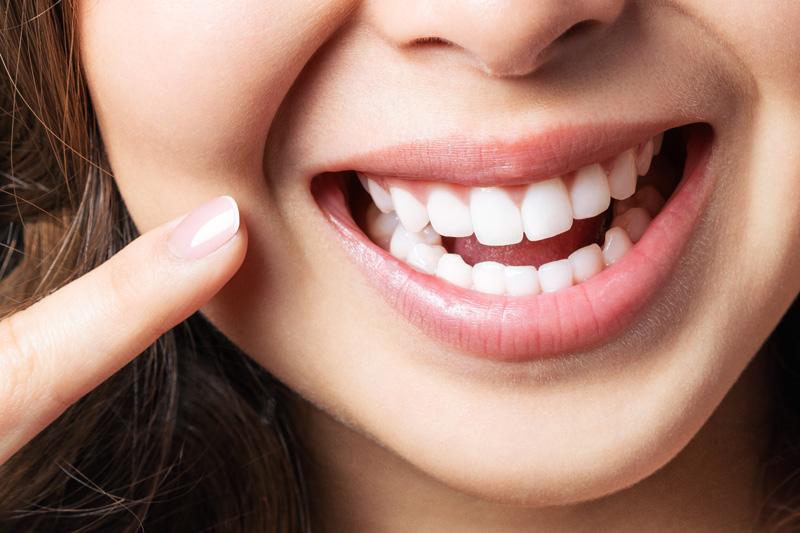 Zahnreinigung in der Fachpraxis Krefeld